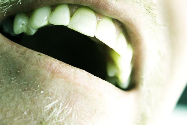 Basic tips for long term dental health